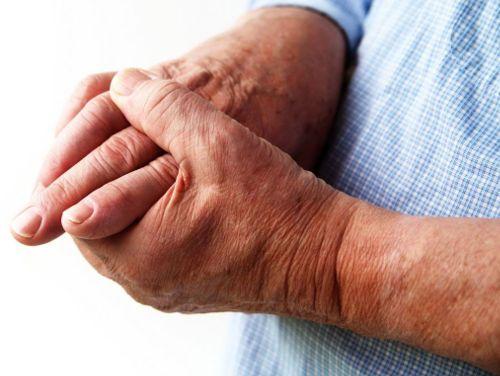 Mida artriit sormed naevad valja