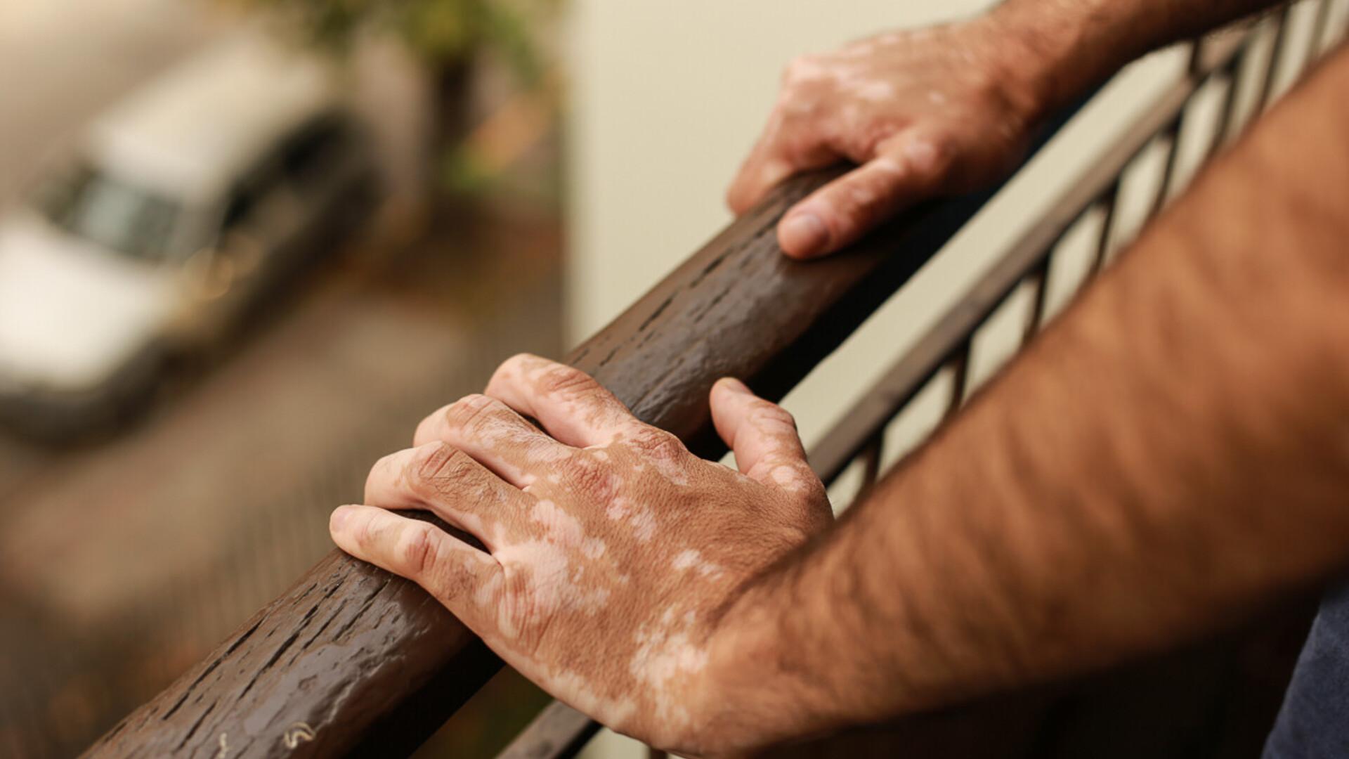 Kuunarliini podagra purunemise ravi Arthroosi ravi lopetamine