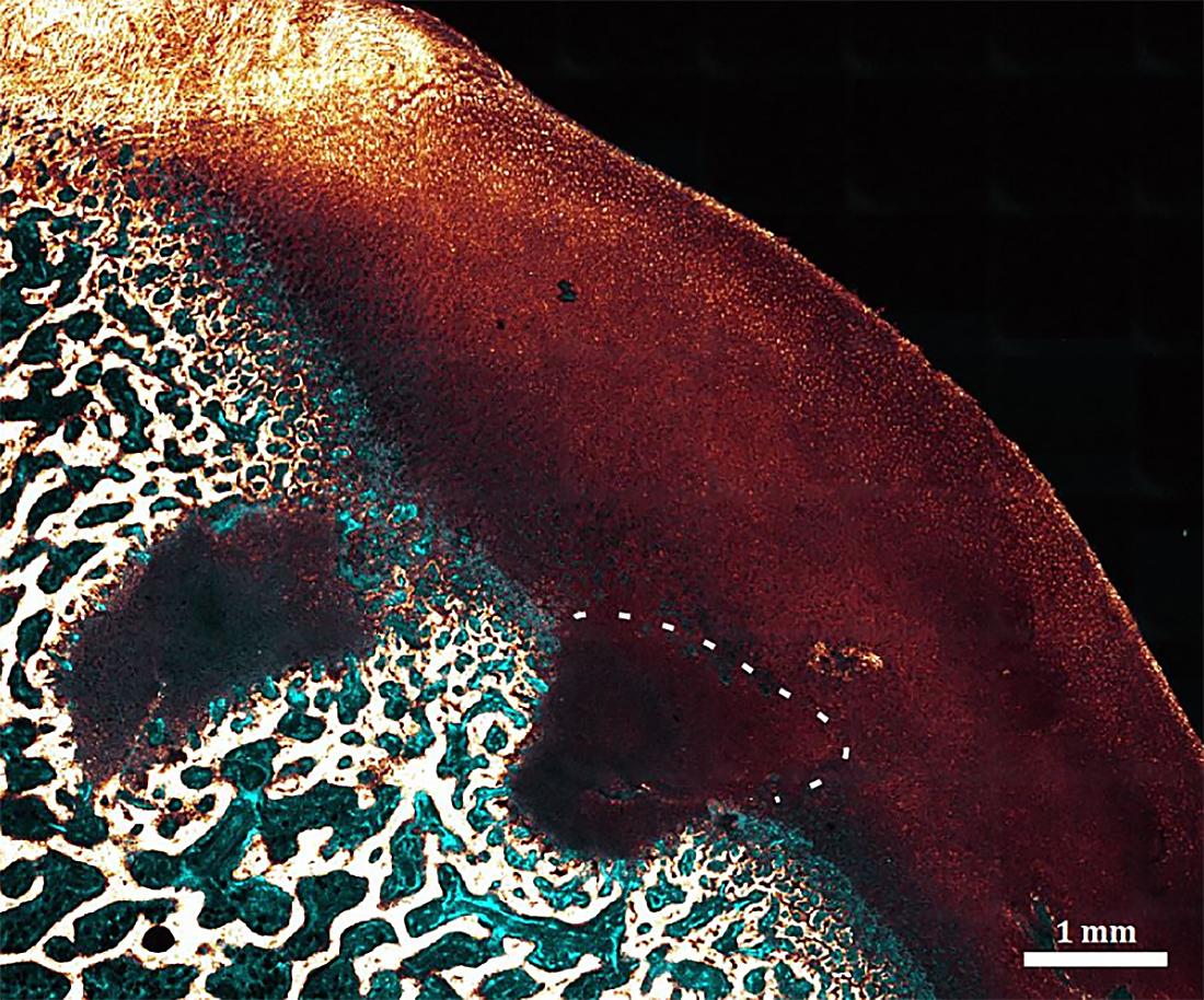 Muscle trauma ola sailitab Kuidas ravida valu kuunarnukis, kui paindumine ja pikendamine