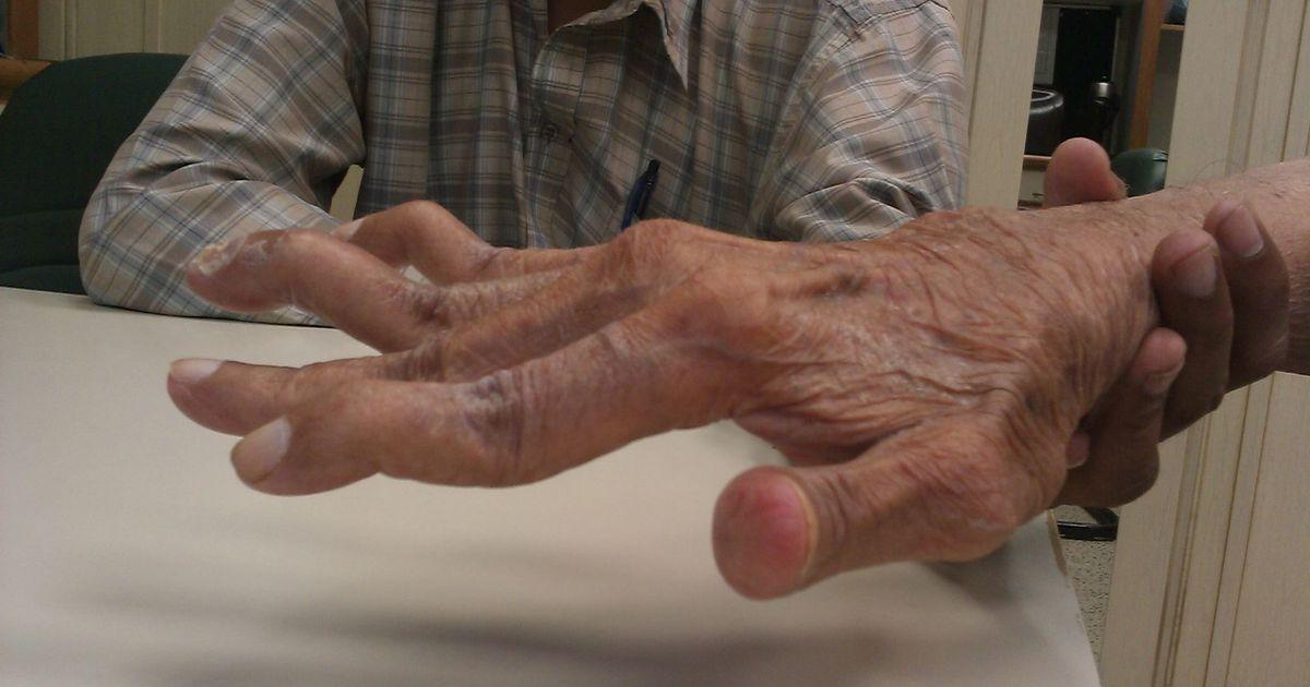 Sormede liigesed on vaga haiged Liigestega haigused