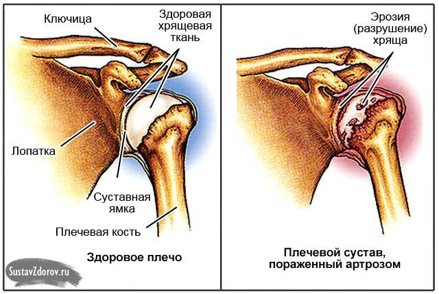 Osteokondroosi soojenemise salv Lihvide valu