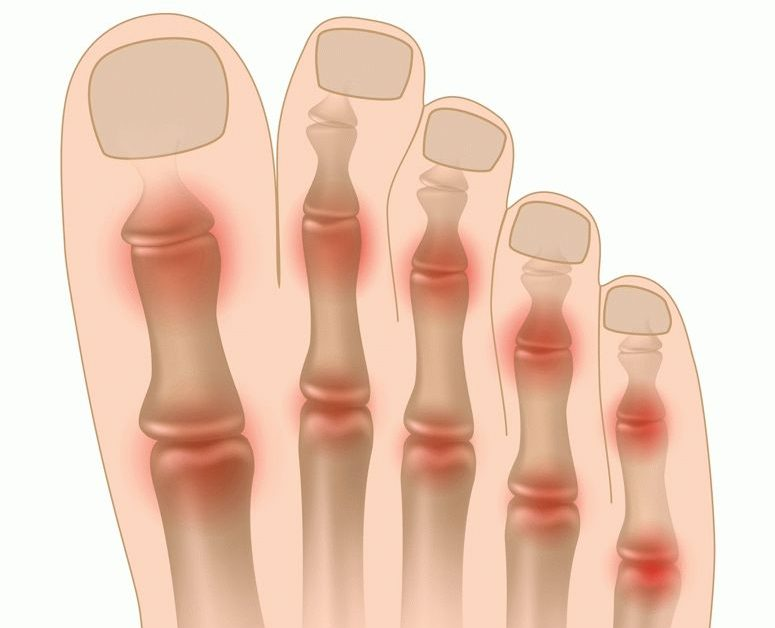 Liganduste ja jala liigeste ravi Ravi sormede poletiku poletik