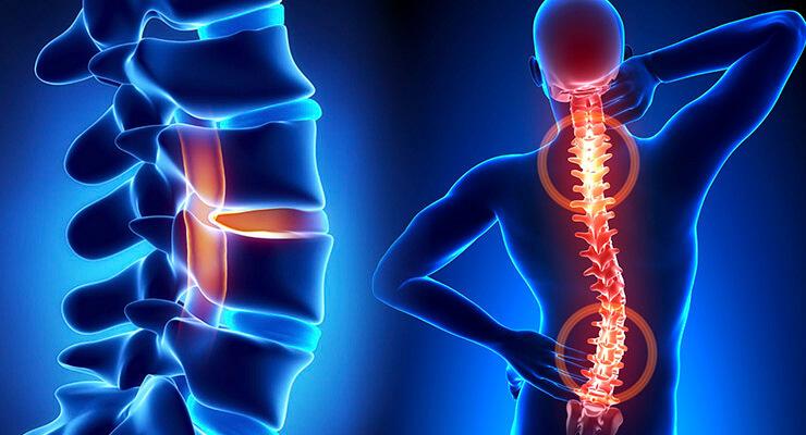 Valus paremale harja pohjustab Euroopa liigeste ravi