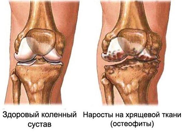 Tomatite kahjustamine liigeste artroosiga Parim salv osteokondroosi ulevaateid