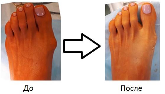 Sorme jalgade ravi liite poletik Millised folk meetodid artroosi raviks