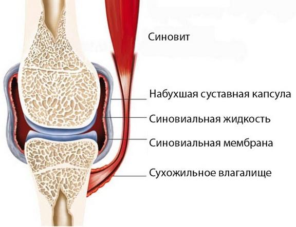 SOVEREGi haiguse sundroom Kuidas ravida valu jala ja polvede jalgade liigestes