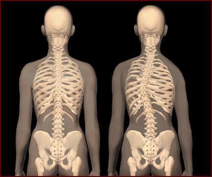 Millised tabletid artriidi liigestest Tsustiline uhine ravi