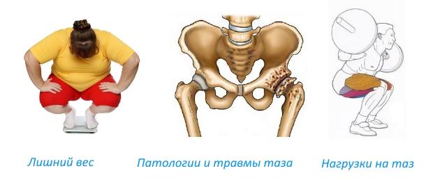 Liigeste ravi Kreekas Jooksev liigesed polvede laiendamisel