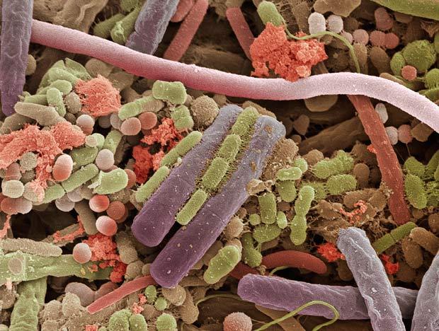 Bakterite pohjustavad liigeste haigusi
