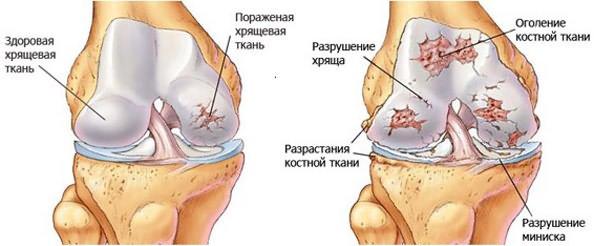 Suurte liigeste ravi artroos Targers meditsiinilise valuga liigestes