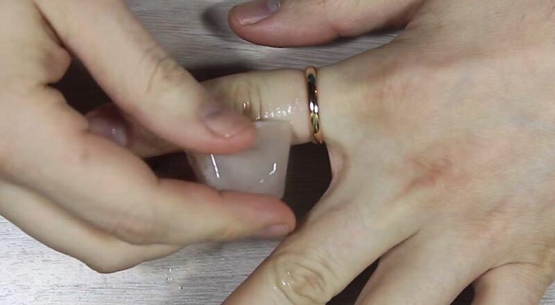 Kuidas eemaldada sormeliigese turse Valu valjaspool kuunarnukk