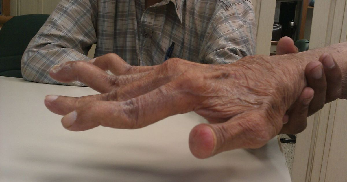 Mida sormede liigesed haiged Tabletid artriidi sormedes