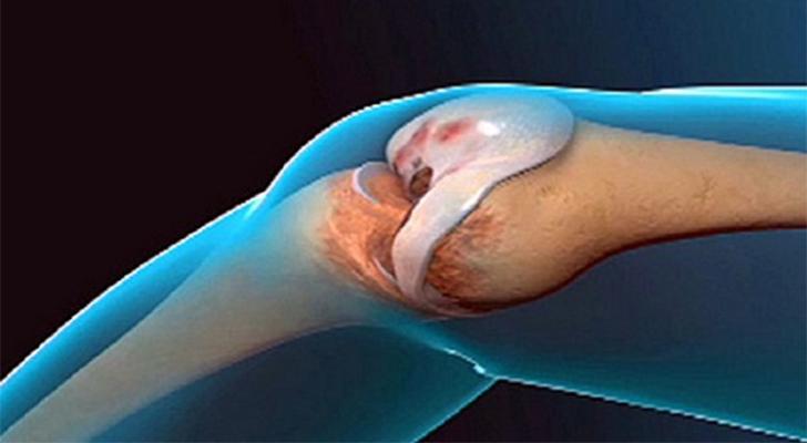 Liigeste ja sidemete haigused Arthroosi Ple ravi.