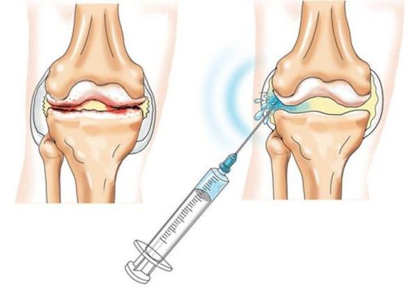 Haigete liigeste anesteesia