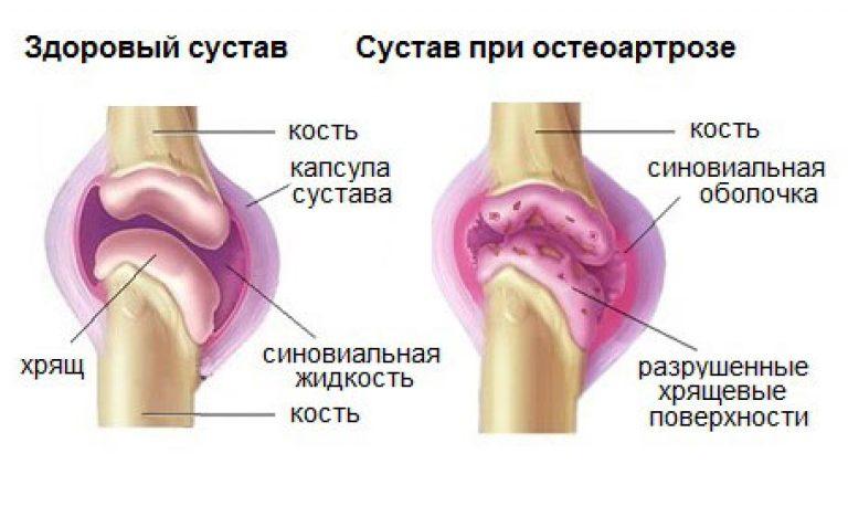 Kuidas ravida valu jala ja polvede jalgade liigestes