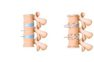 Osteokondroos harja liigeste