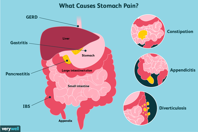 Artroosi nao liigend