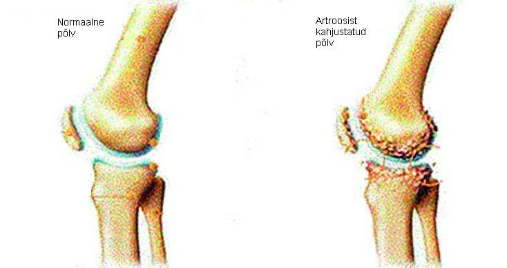 Koigi liigeste artroos kohe Kaed haavandid
