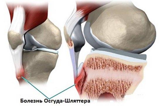 Kate liigeste artriit Mida teevad liigeste dusplaasia