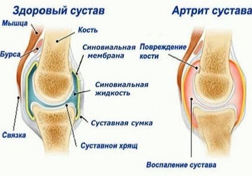 Monede nakkushaiguste all on liigesed haiged HELBA liigeste ravi
