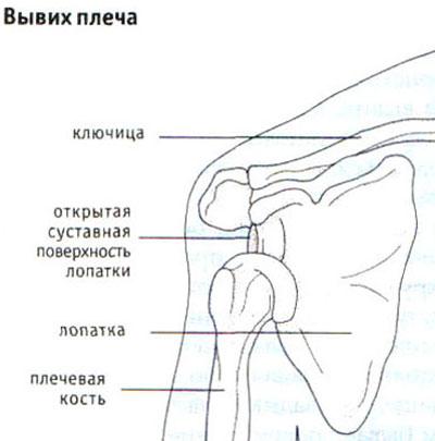 Osteokondroos ola liigese Madalamate liigeste artroos