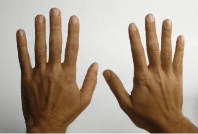 Rohu liigeste ravi Radikaalne artroosi ravivastane meetod