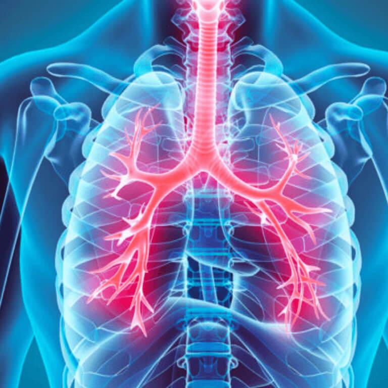 Bronhiidi valulikud liigesed geeli ja tablette liigeste valust