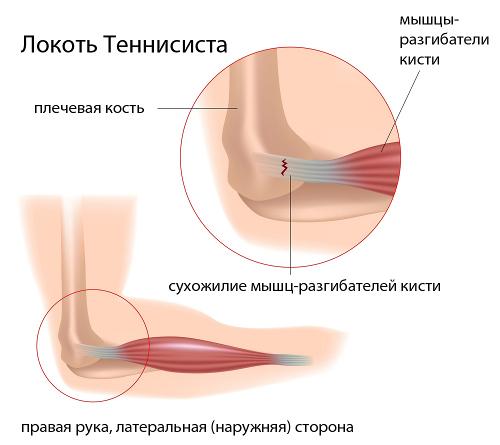 valus ja lohkuda poidla liigese Bruises valus liigesed