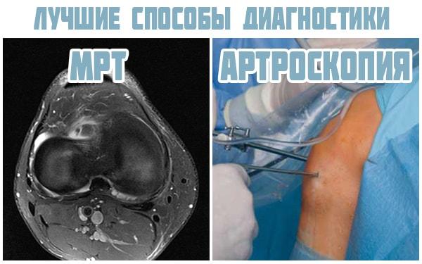 Valus polve diagnostika Kurnav valu