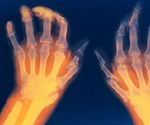 Kuidas ravida artriidi valu liigestes Hurt muudab polve