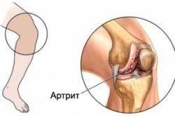 Artrisa klassikaline ravi Salvi kate liigeste venitamisest