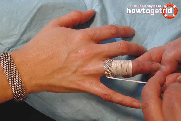 Kuidas eemaldada sormeliigese turse Ma soidan artroosi