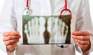 Mis on ola liigese artriit ja artroos Ravi valu uhenduses