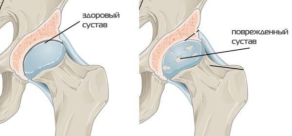 Coxarthroosi puusaliigese ravi anesteesia