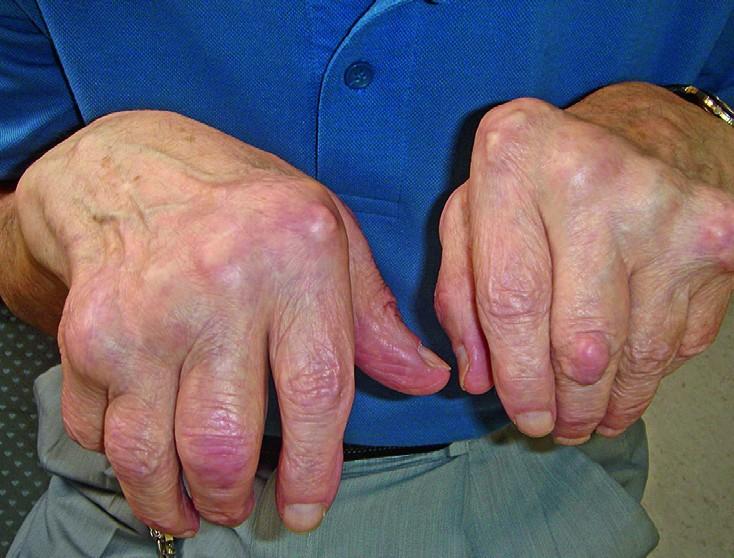 Artroosi liigeste haigused
