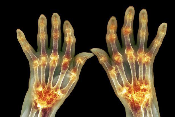 Artriit ray-Tunny Liigendis Lihtsalt valu reie