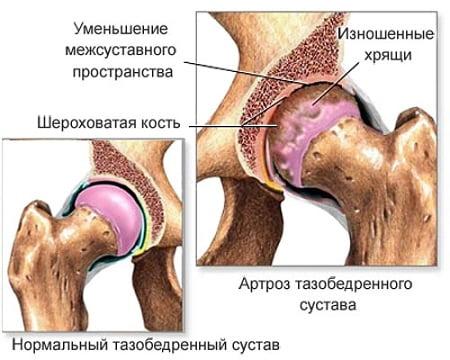 Sustava vigastuste ravi Artriidi arengu arendamine