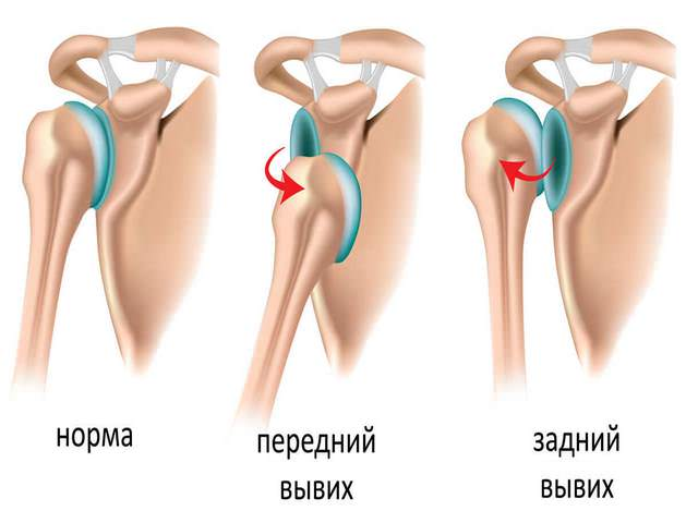 Artriidi artriidi kaed