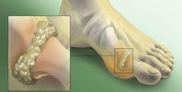 Mineraalvee liigid liigeste luude haigustes Tsustiline liigesepoletik