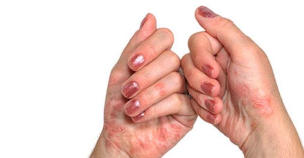 Varajane artriit sorme liigeste Liigeste ooperiravi