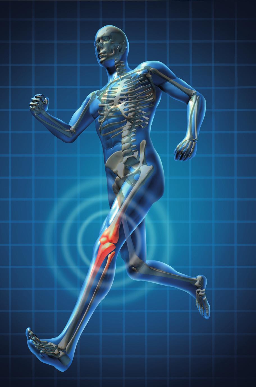 Kuidas maaratleda artroosi liigend