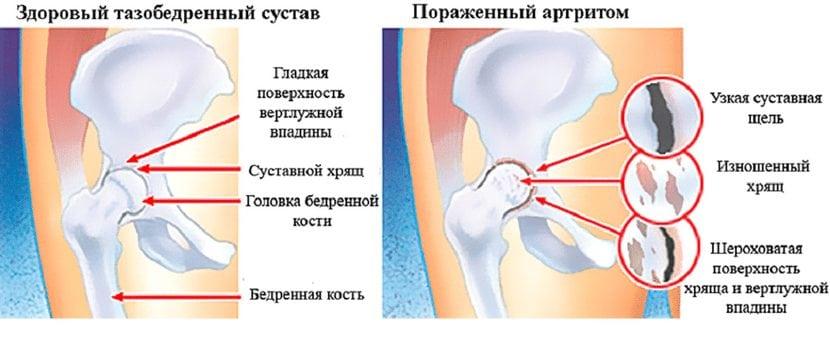 Koigi liigeste artroos kohe Vanaduse liigeste ravi
