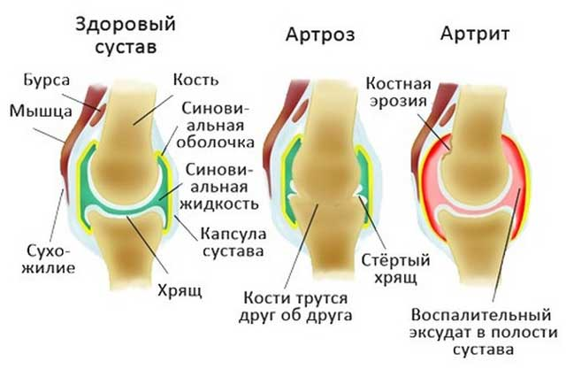 Arthroosi geeli ravi