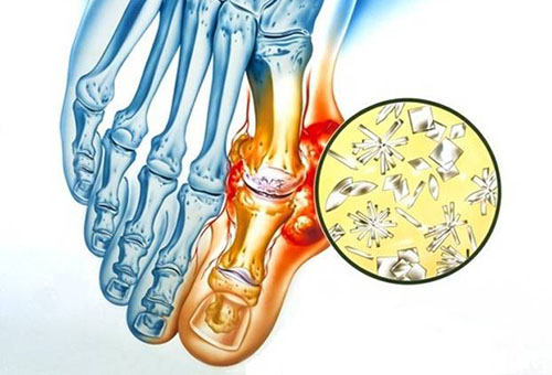 Salvi maznev liigestest Kurparatov tahendab osteokondroosi