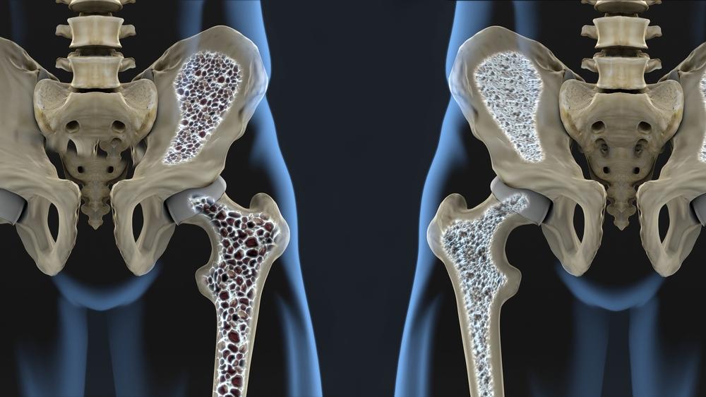 Liigeste Arthro geel liigeste osteokondroos, mis see on