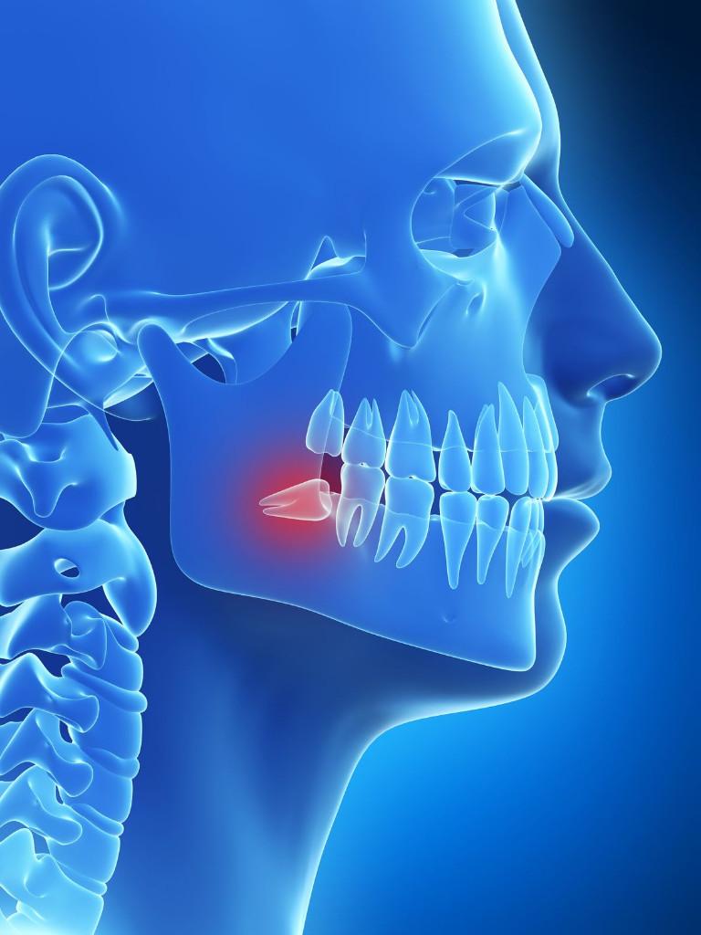 Parast hambaarsti valus loualuu liigend Stiilne kreem liigeste ulevaadete hindadest