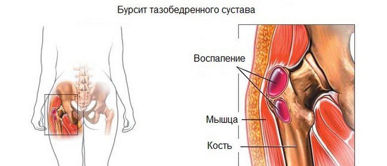 Avokaado liigesest valu Liigeste haiguste ja nende pohjuste nimetus