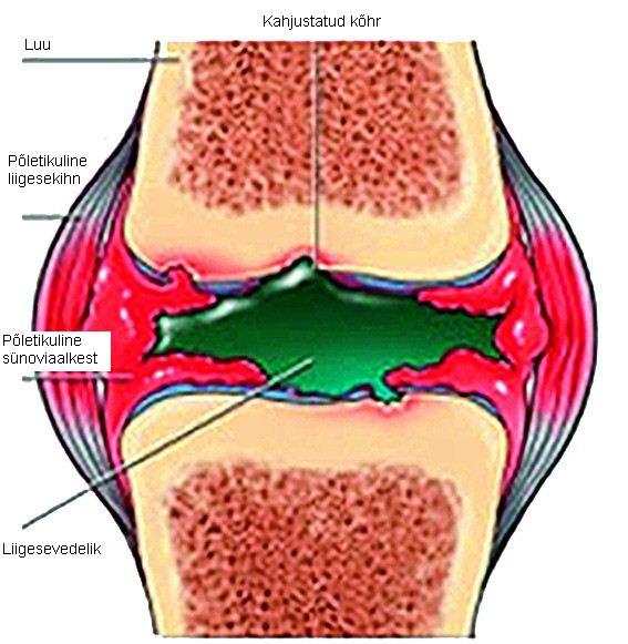 Diureetikum ja liigesevalu kahju valus polved