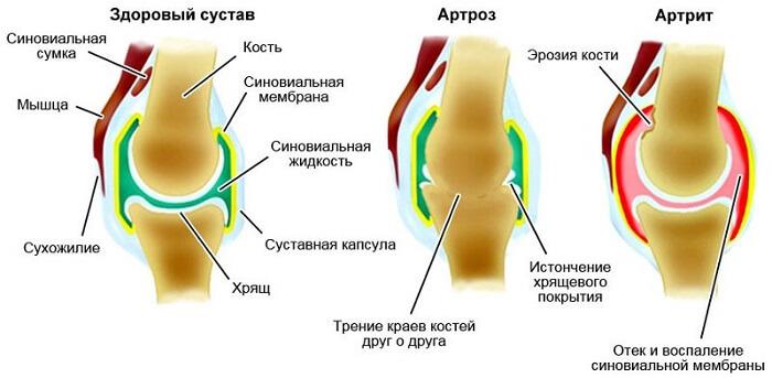 Klopsake ja valulikud liigesed pohjustavad Aspen liigeste haigustest