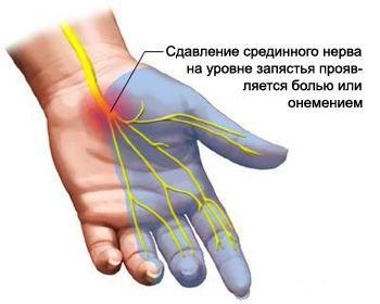 Kuidas aidata artriidi katt